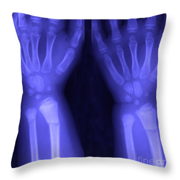 Broken Wrist Throw Pillow by Ted Kinsman