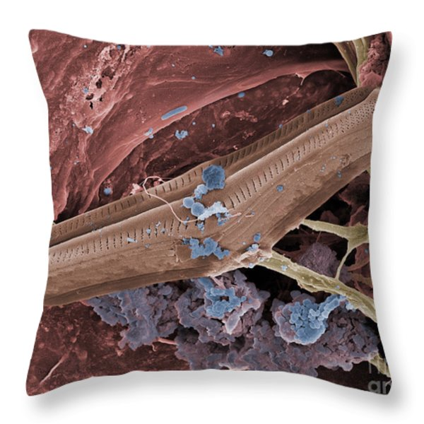 Diatom With Thermophilic Bacteria Throw Pillow by Ted Kinsman