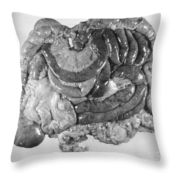 Digestive Organs Throw Pillow by Omikron