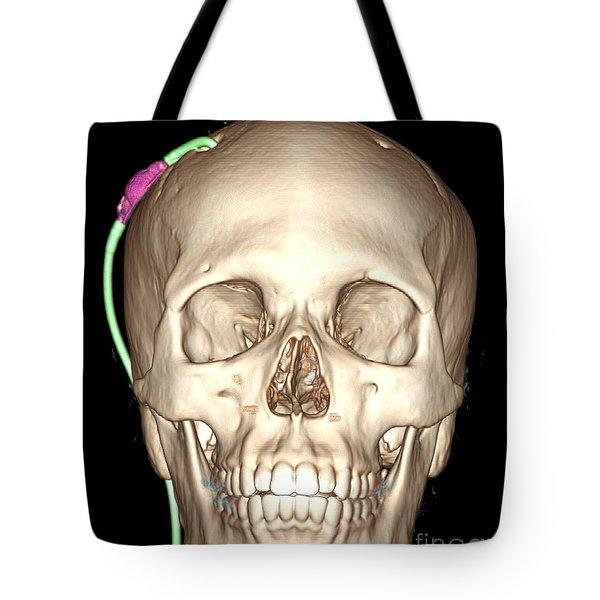 Enhanced 3d Ct Reconstruction Tote Bag by Living Art Enterprises, LLC