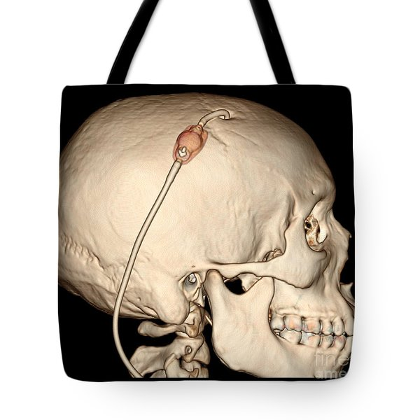 3d Ct Reconstruction Of Intracranial Tote Bag by Living Art Enterprises, LLC