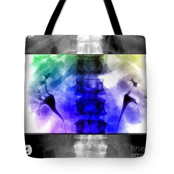 Normal Ivp Tote Bag by Living Art Enterprises