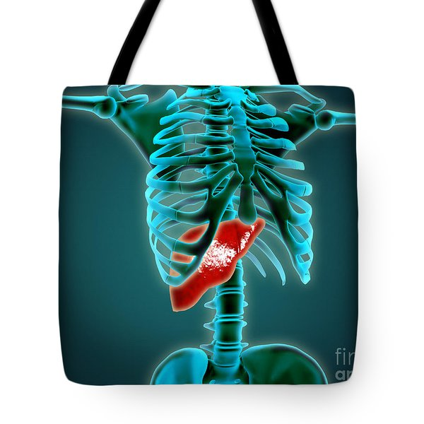 X-ray View Of Human Skeleton With Liver Tote Bag by Stocktrek Images