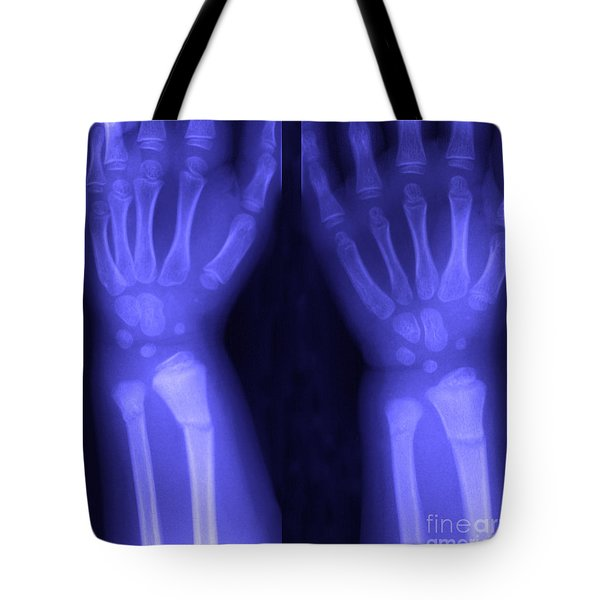 Broken Wrist Tote Bag by Ted Kinsman