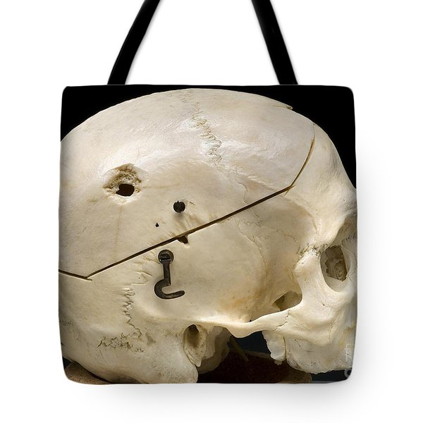 Gunshot Trauma To Skull, 1950s Tote Bag by Science Source