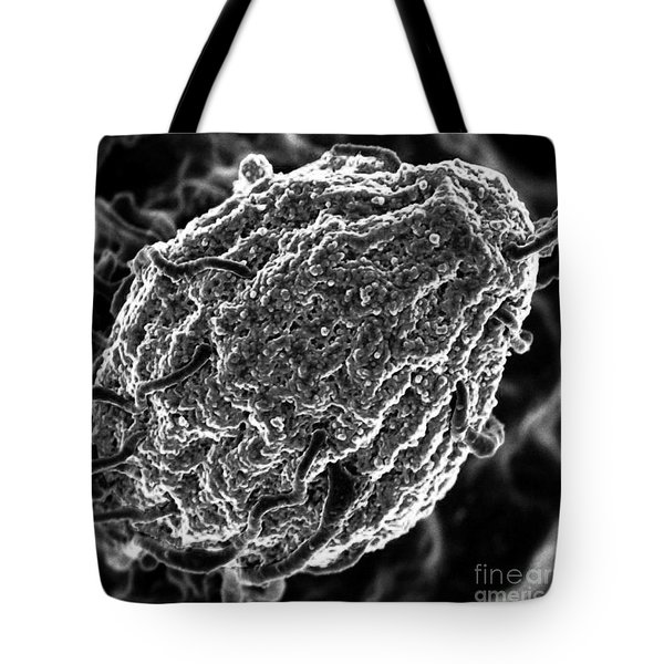 Phagocytosis Of Yeast Particle Tote Bag by Science Source