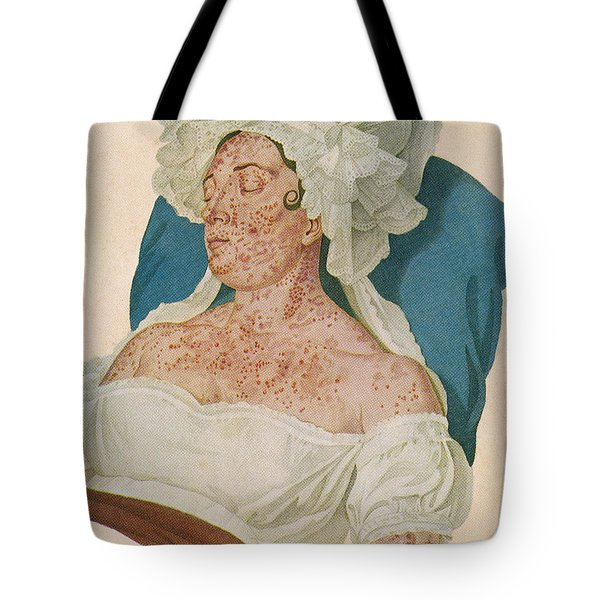 Scarlet Fever Tote Bag by Science Source