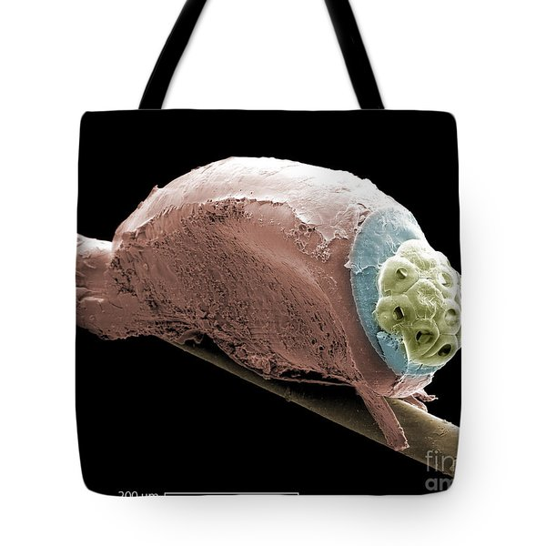 Sem Of A Head Lice Eggs Tote Bag by Ted Kinsman