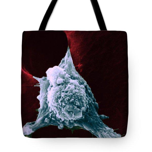Sem Of Metastasis Tote Bag by Science Source