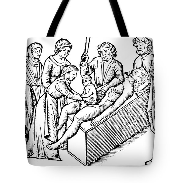 Cesarean Section 16th Century Tote Bag by Science Source