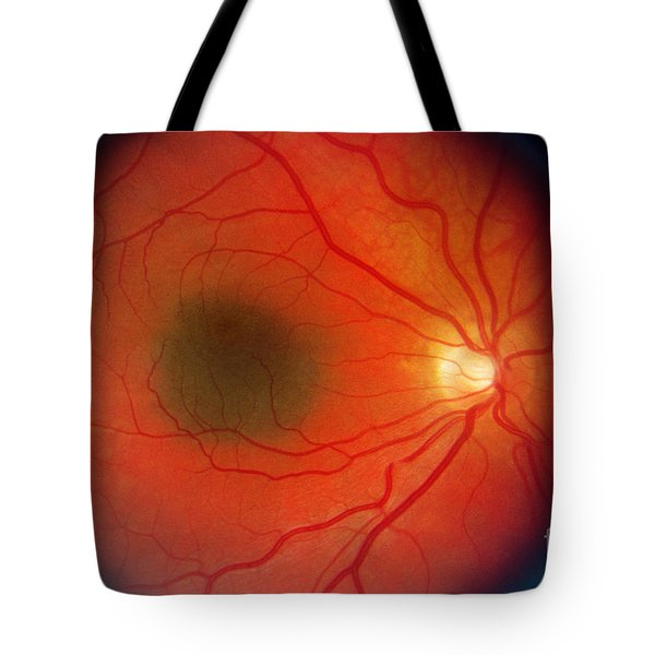 Nevus In The Retina Tote Bag by Science Source
