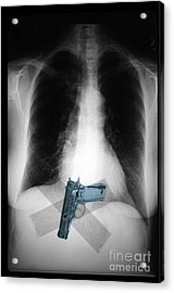 Chest X-ray Showing Hidden Gun Acrylic Print by Scott Camazine