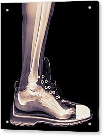 Running Shoe X-ray Acrylic Print by Photostock-israel
