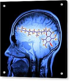 Brain Mri Scan And Vitamin E Molecule Acrylic Print by Alfred Pasieka