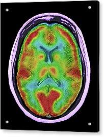 Normal Brain Blood Flow Acrylic Print by Zephyr