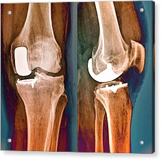 Partial Knee Replacement Acrylic Print by Zephyr