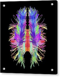 White Matter Fibres And Brain, Artwork Acrylic Print by Science Photo Library