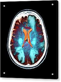 Brain In Toxic Encephalopathy Acrylic Print by Zephyr