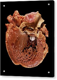 Artificial Heart Valve Acrylic Print by Pr. M. Forest - Cnri