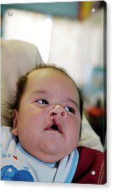 Baby With A Cleft Lip Acrylic Print by Jim West
