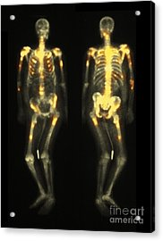 Bone Scan Showing Multiple Metastases Acrylic Print by Scott Camazine