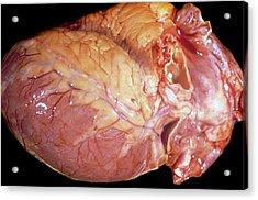 Enlarged Heart Acrylic Print by Pr. R. Abelanet - Cnri
