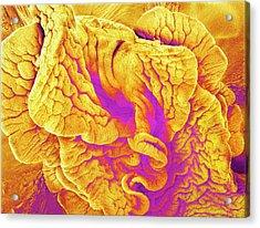 Fimbriae Of A Fallopian Tube Acrylic Print by Susumu Nishinaga
