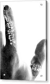Finger X-ray Acrylic Print by Mike Grubb