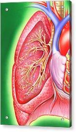 Obstructive Lung Disease Acrylic Print by John Bavosi