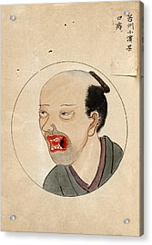 Oral Cancer Patient Acrylic Print by National Library Of Medicine