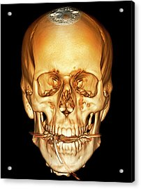 Road Accident Victim On Ventilation Acrylic Print by Zephyr