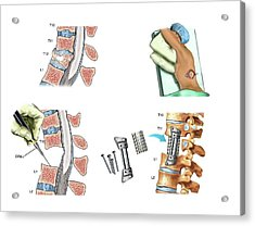 Surgery To Fuse The Thoracic Spine Acrylic Print by John T. Alesi