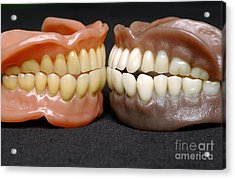Two Sets Of Dentures Acrylic Print by Medicimage