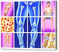Vitamin Deficiency Symptoms Acrylic Print by John Bavosi