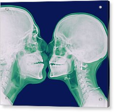 X-ray Kissing Acrylic Print by Photostock-israel