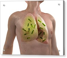 Bacterial Lung Infection, Artwork Acrylic Print by Sciepro