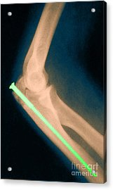 Broken Arm With Metal Pin, X-ray Acrylic Print by Science Source
