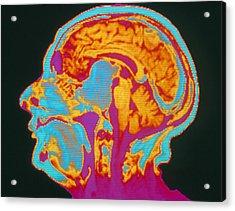 Coloured Mri Brain Scan Of A Pituitary Tumour Acrylic Print by Mehau Kulyk