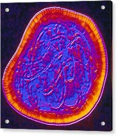 Coloured Tem Of A Rubella (german Measles) Virus Acrylic Print by Pasieka