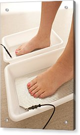 Iontophoresis For Excess Sweating Acrylic Print by