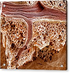 Mouse Lung, Sem Acrylic Print by Science Source