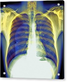 Pneumothorax, X-ray Acrylic Print by Du Cane Medical Imaging Ltd