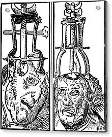 Trepanning 1525 Acrylic Print by Science Source