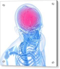 Headache, Conceptual Artwork Acrylic Print by Sciepro