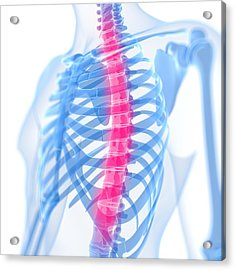 Back Pain, Conceptual Artwork Acrylic Print by Sciepro