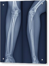 Broken Arm, X-ray Acrylic Print by Zephyr