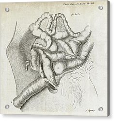Fistula And Hernia, 18th Century Acrylic Print by Middle Temple Library