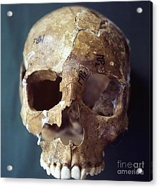 Forensic Evidence, Skull Reconstruction Acrylic Print by Science Source