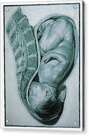 Full-term Foetus At 40 Weeks Acrylic Print by Mehau Kulyk