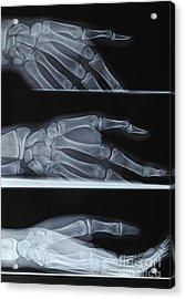 Hand X-ray Acrylic Print by Sami Sarkis